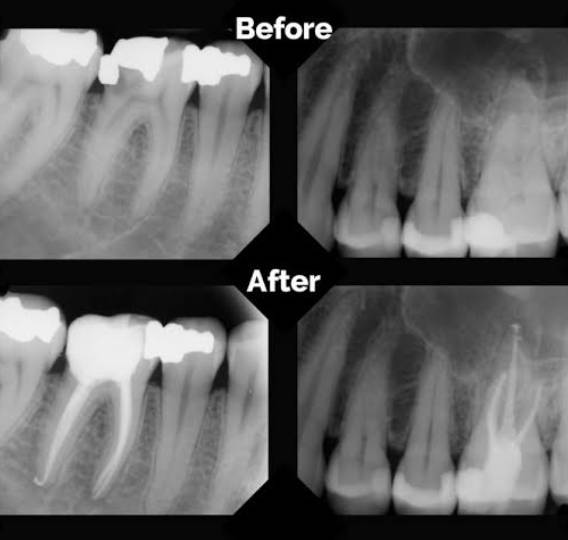 Root Canals Before and After