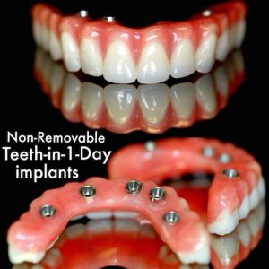 Dental Implants in Los Algodones Mexico